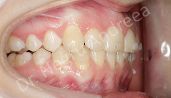 Caz 2 dupa tratamentul cu Invisalign (3)