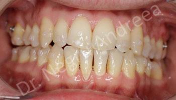 Caz 3 dupa tratament cu Invisalign (2)