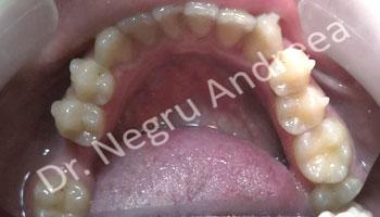 caz 1 dupa tratament invisalign (2)