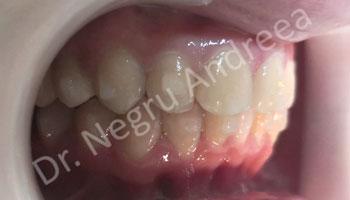 caz 1 dupa tratament invisalign (3)
